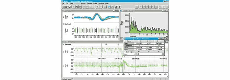 Data Acquisition and Analysis: CED Spike-2